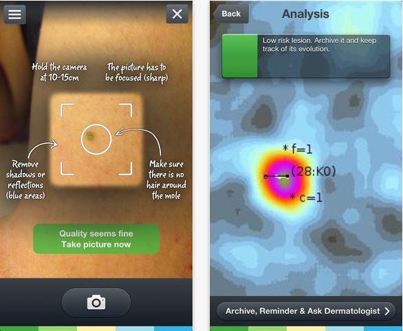 skin-vision-app-screenshots