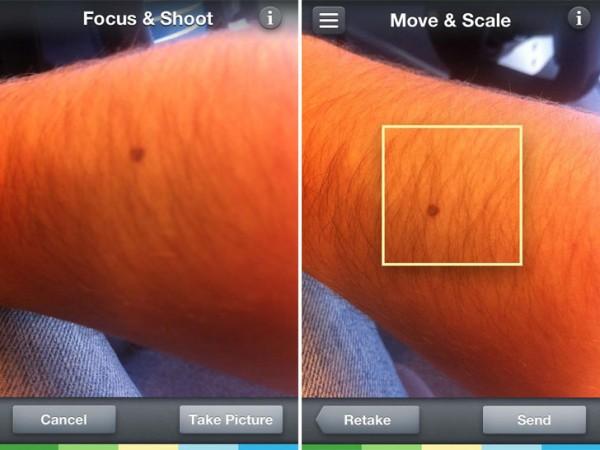 skinvision-app-skin-cancer-2